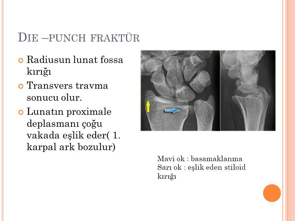 Die –punch fraktür Radiusun lunat fossa kırığı
