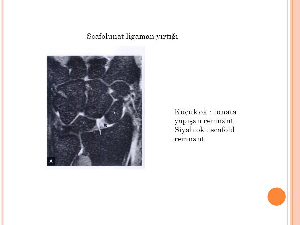 Scafolunat ligaman yırtığı