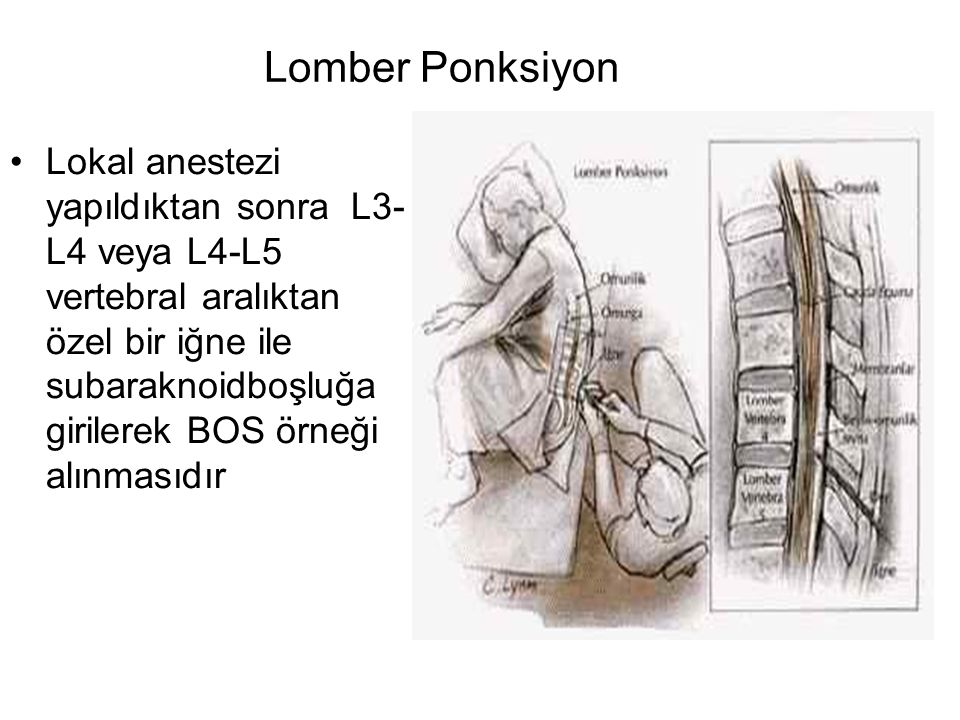 Lomber Ponksiyon