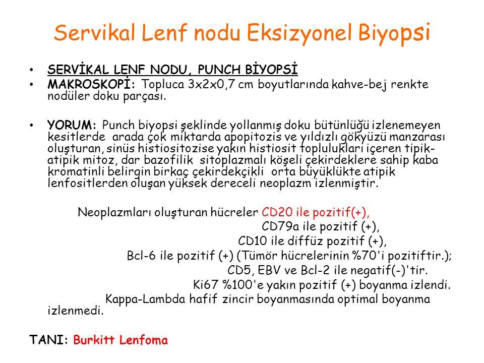 Servikal Lenf nodu Eksizyonel Biyopsi