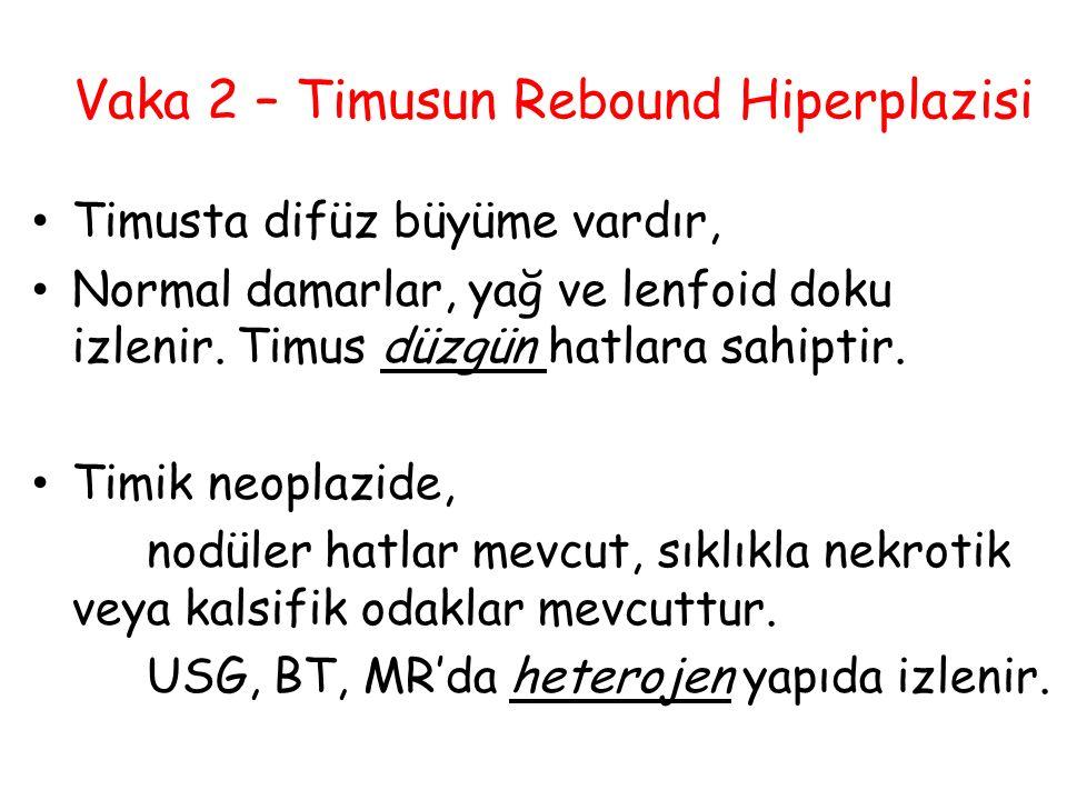 Vaka 2 – Timusun Rebound Hiperplazisi