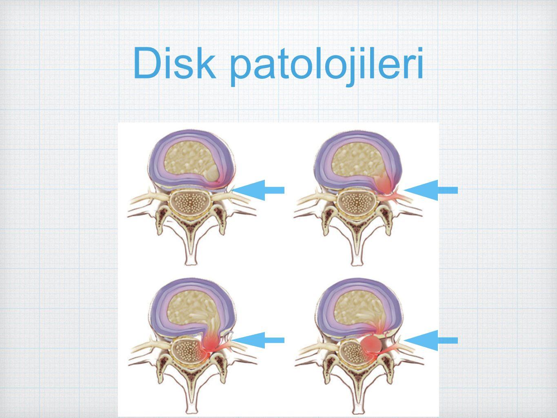 Disk patolojileri