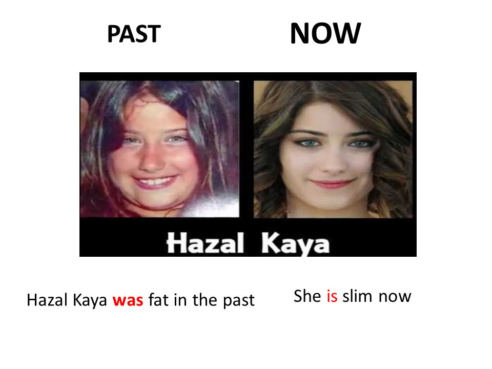 NOW PAST She is slim now Hazal Kaya was fat in the past