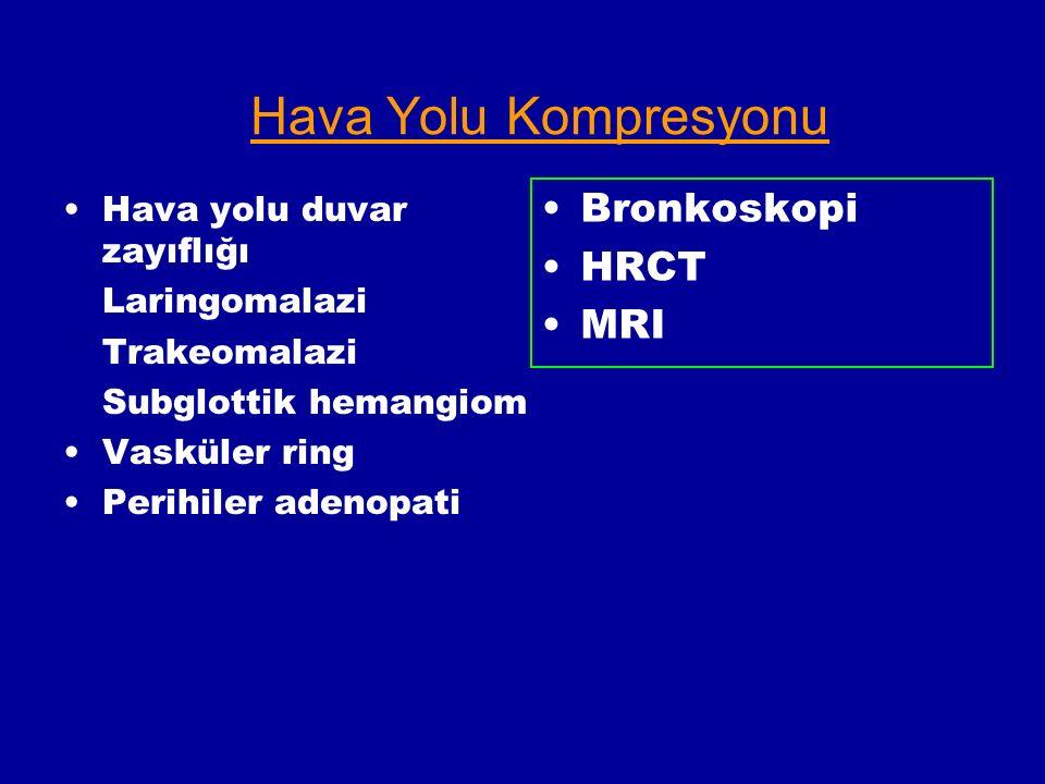 Hava Yolu Kompresyonu Bronkoskopi HRCT MRI Hava yolu duvar zayıflığı