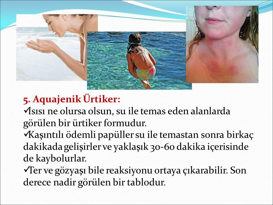 5. Aquajenik Ürtiker: Isısı ne olursa olsun, su ile temas eden alanlarda görülen bir ürtiker formudur.