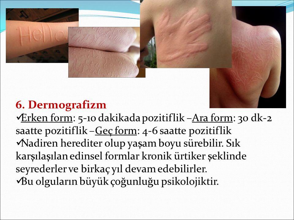 6. Dermografizm Erken form: 5-10 dakikada pozitiflik –Ara form: 30 dk-2 saatte pozitiflik –Geç form: 4-6 saatte pozitiflik.