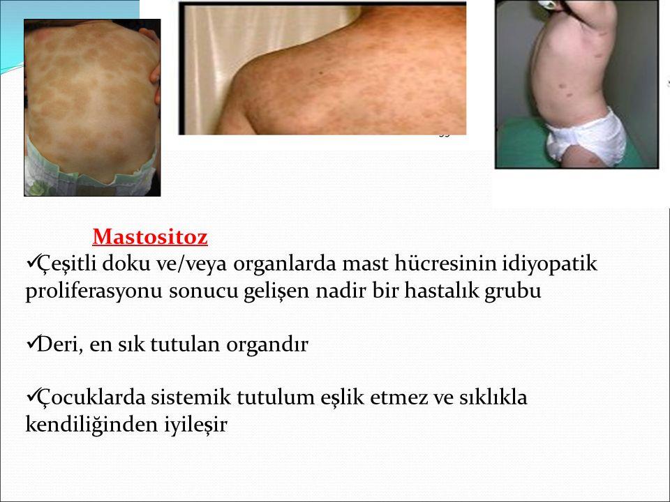 Mastositoz Çeşitli doku ve/veya organlarda mast hücresinin idiyopatik proliferasyonu sonucu gelişen nadir bir hastalık grubu.