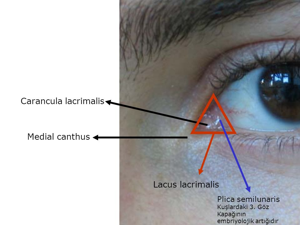plica semilunaris swollen eye allergies - 960×720