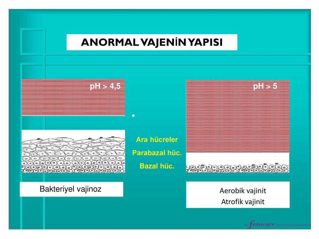 Bakteriyel vajinozis. Semptomlar, nedenleri ve tedavisi