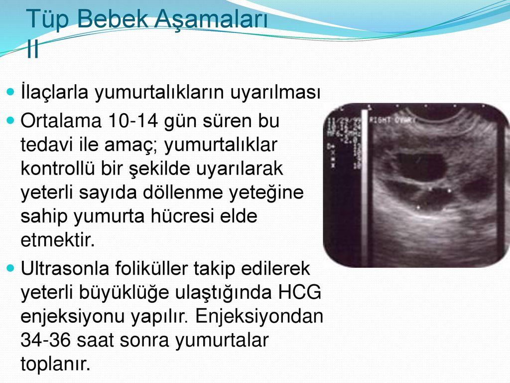 Tüp Bebek Tedavisinde Sitoplazmik Transfer