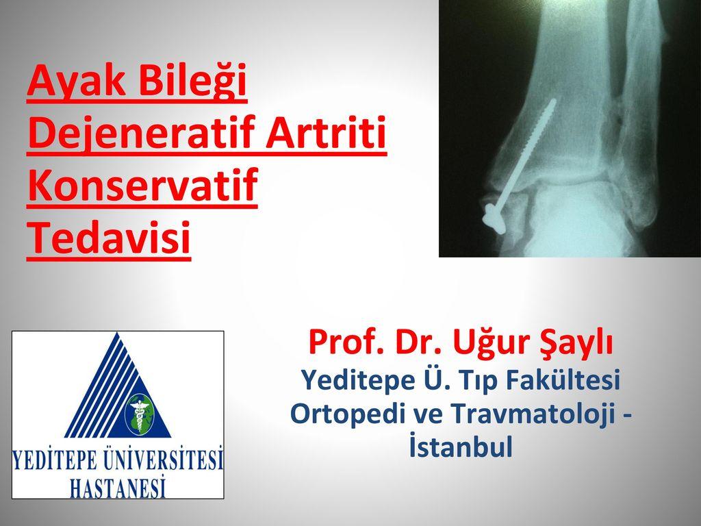 Diz artritinin etkili tedavisi