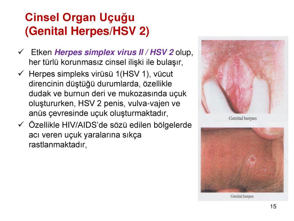Genital herpes uçuk