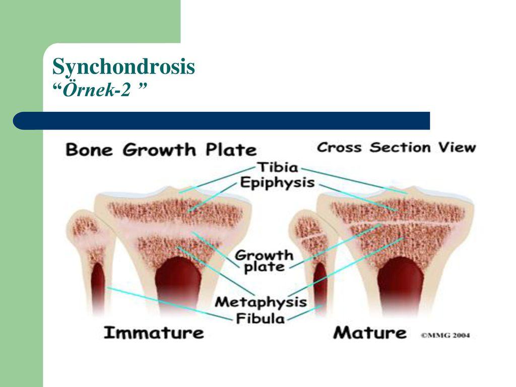 Arthrologia Eklembilim Ppt Indir Oksipital kemiğin pars basilaris'i ile temporal kemiğin pars petrosa'sı. arthrologia eklembilim ppt indir