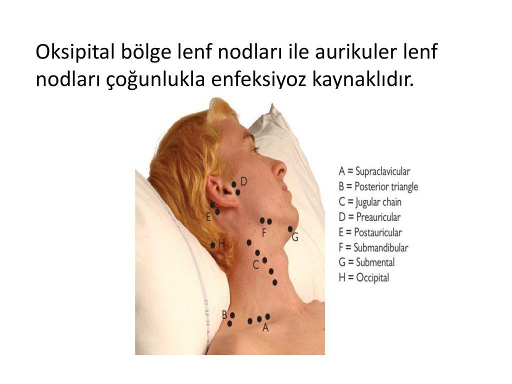 Lenfadenit, lenf düğümlerini nasıl tedavi edilir