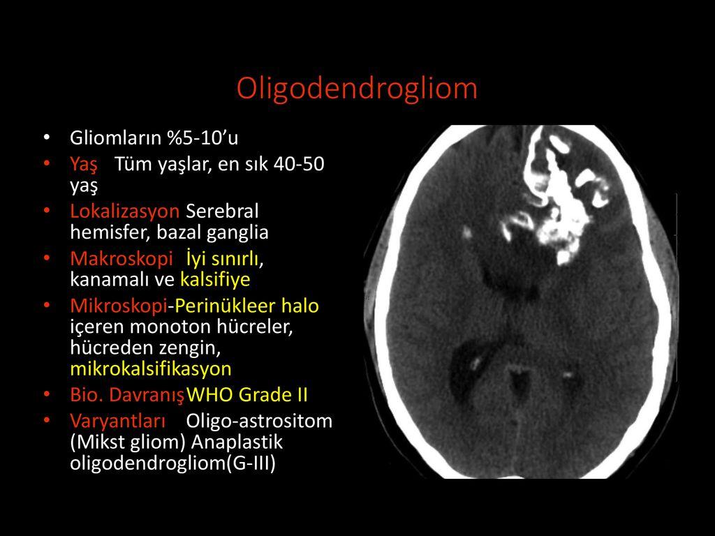 SANTRAL SİNİR SİSTEMİ TÜMÖRLERİ Ankara Tıp Nöroşirürji - ppt indir
