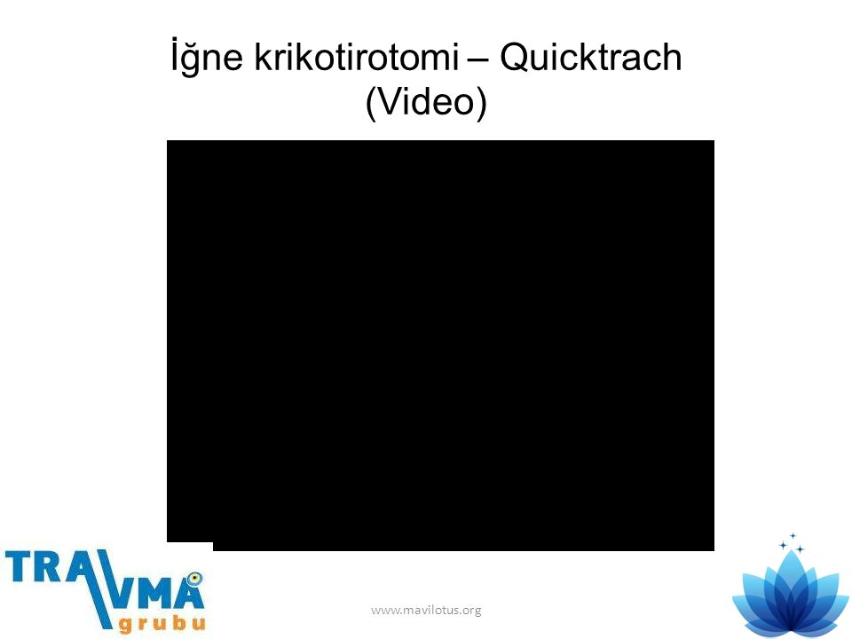 İğne krikotirotomi – Quicktrach (Video)