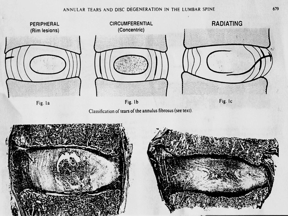 In a post mortem study, Vernon-Roberts 1977 described a number of types of annular tear or fissure in the lumbar spine. He termed peripheral tears adjacent to the vertebral end plate as rim lesions . He also described delaminating tears which pass circumferentially and radial tears which extend into the annulus from the nucleus. These variations are also seen during lumbar discography.