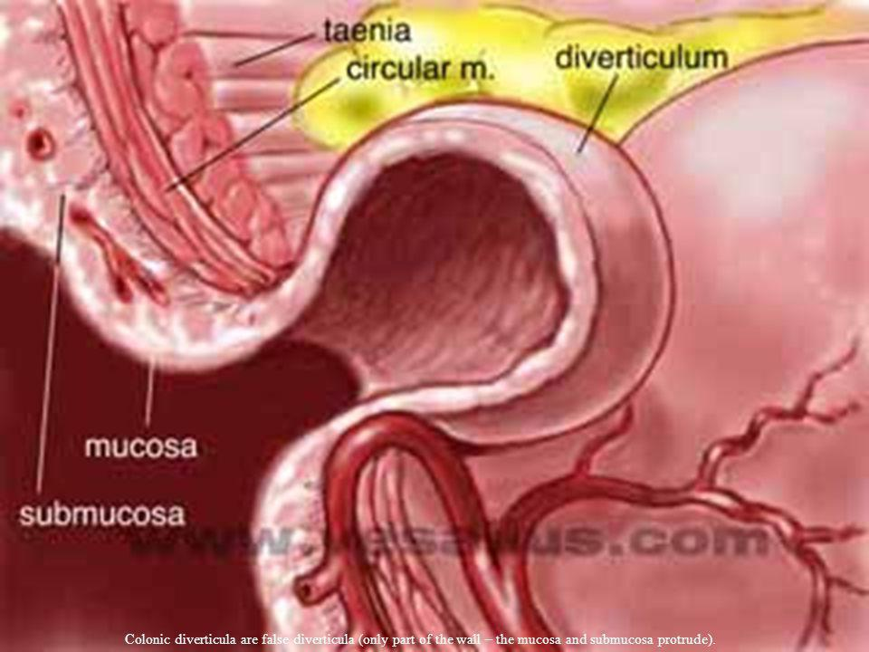 Colonic diverticula are false diverticula (only part of the wall – the mucosa and submucosa protrude).