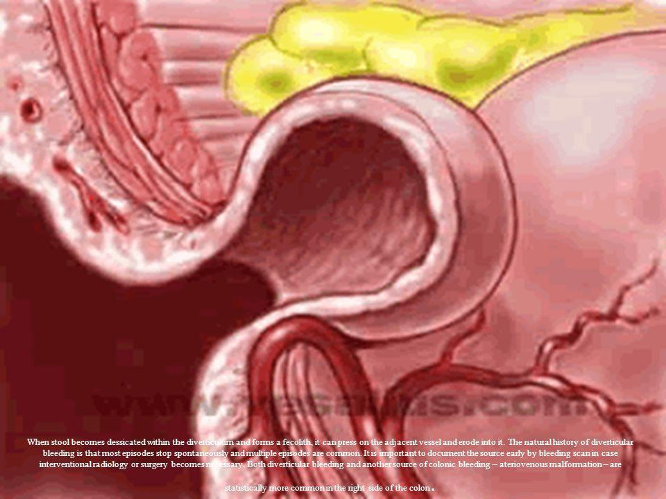 When stool becomes dessicated within the diverticulum and forms a fecolith, it can press on the adjacent vessel and erode into it.