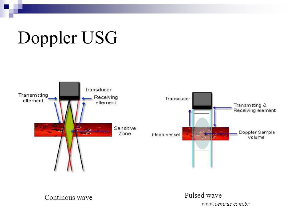 Doppler USG Pulsed wave www.centrus.com.br Continous wave