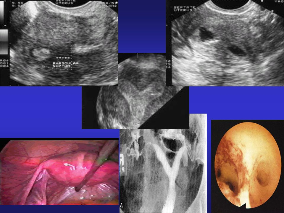 Figure 1 Transvaginal scan with color Doppler facilities demonstrates