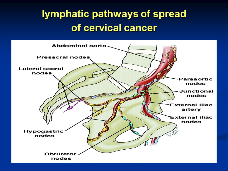 lymphatic pathways of spread of cervical cancer
