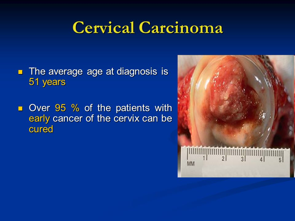 Cervical Carcinoma The average age at diagnosis is 51 years