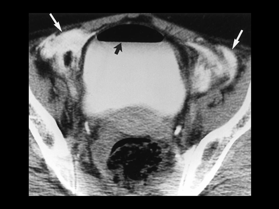 Extraperitoneal bladder rupture and normal bowel loops in a 77-year-old woman.