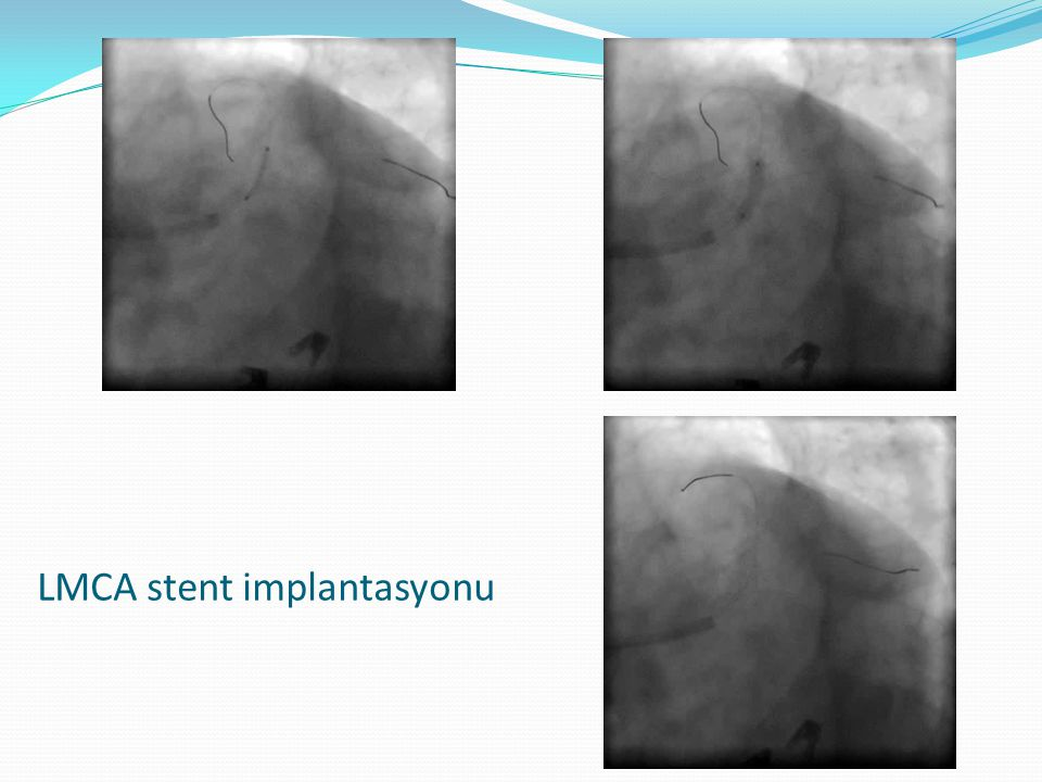 LMCA stent implantasyonu