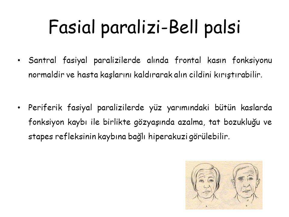 Fasial paralizi-Bell palsi