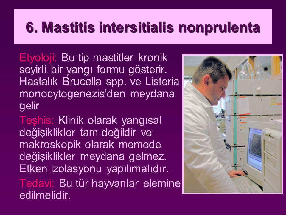 6. Mastitis intersitialis nonprulenta