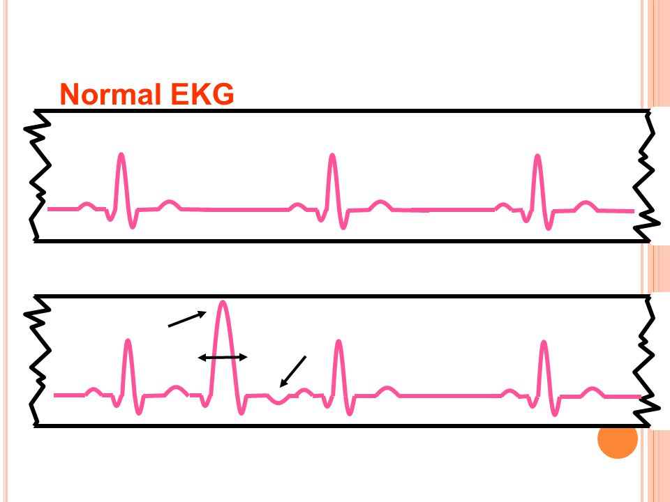 Normal EKG Ventriküler EA