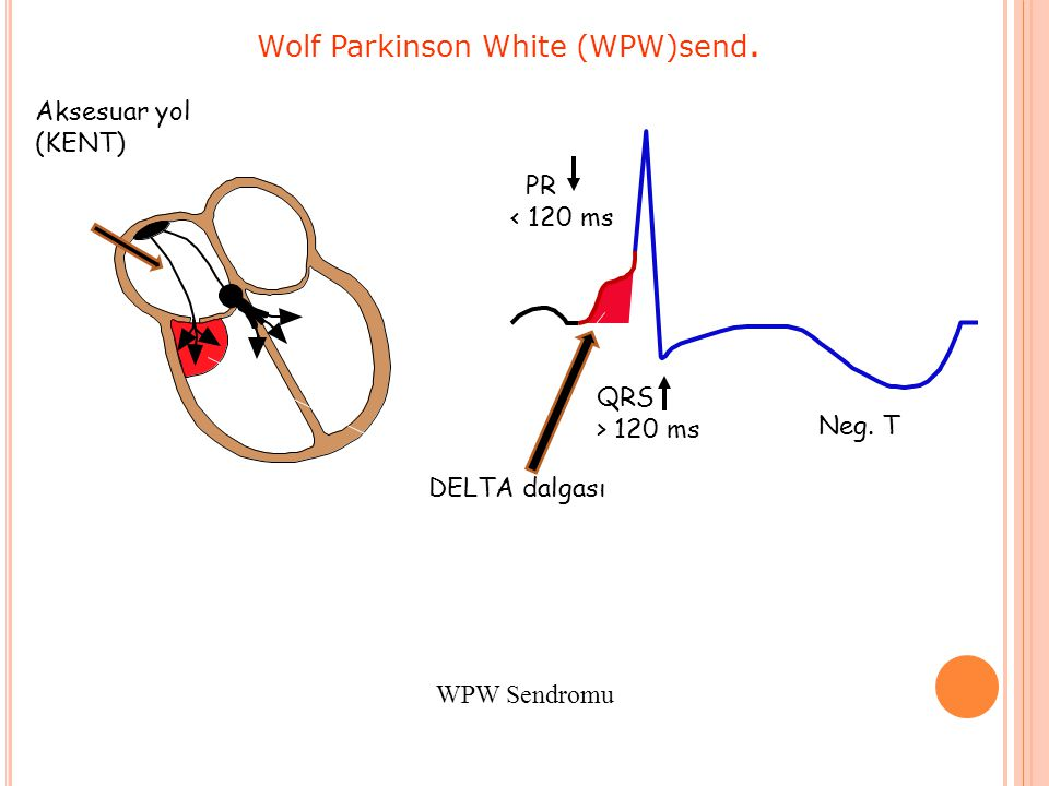 Wolf Parkinson White (WPW)send.