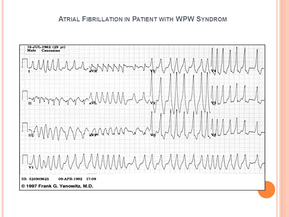 Atrial Fibrillation in Patient with WPW Syndrom