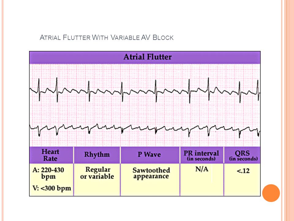 Atrial Flutter With Variable AV Block