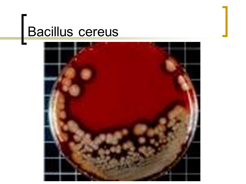 unknown rport on bacillus cereus Search the history of over 336 billion web pages on the internet.